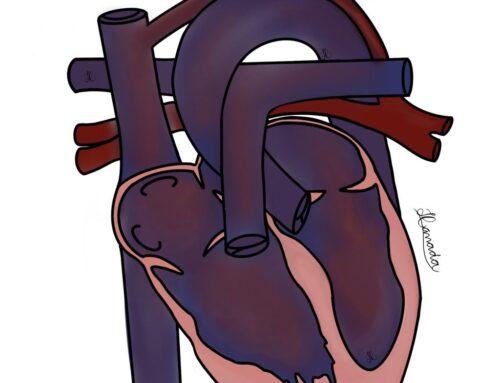 Tudo o que você precisa saber sobre Drenagem anômala total de veias pulmonares (DATVP)