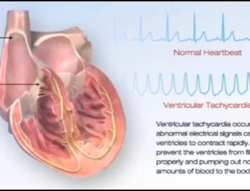 Tudo o que você precisa saber sobre Taquicardia Ventricular