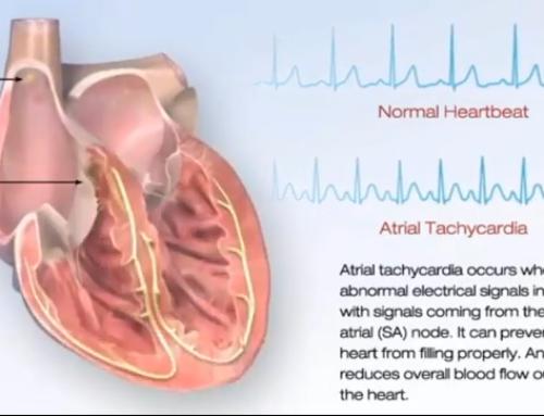 Você sabe o que é Taquicardia Atrial?
